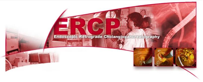 ERCP Indiana University, School of Medicine, Department of